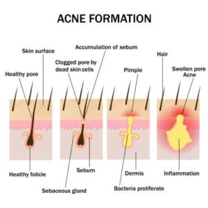 Bildung von Akne