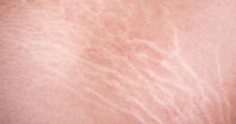 Dehnungsstreifen auf der Haut