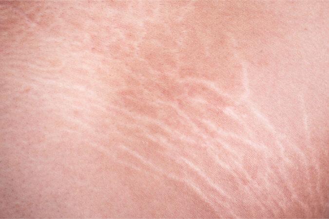 Der dehnungsstreifen pubertät in Dermatologe erklärt: