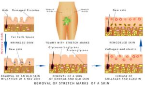 Diagram Dehnungsstreifen der Haut