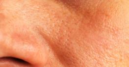 Fettige Haut mit großen Poren