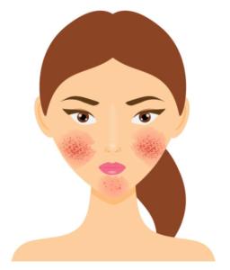Frau mit Couperose-Haut-Problem