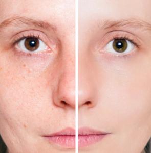 Akne bekämpfen - Vergleich vorher nacher