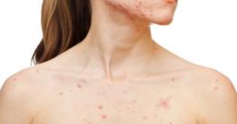 Fruchtsäurepeeling gegen Akne