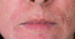 Hautoberfläche bei Abschälung der Haut